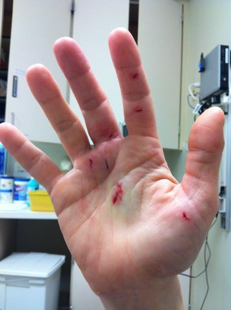 injuredhand