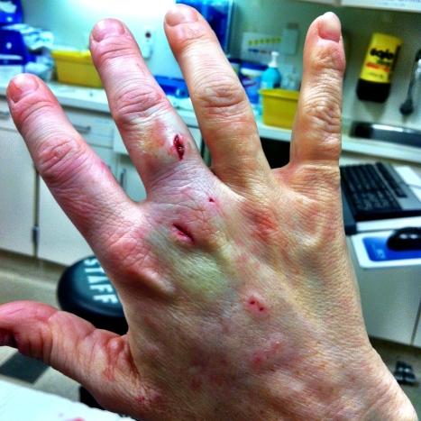 injuredhand3