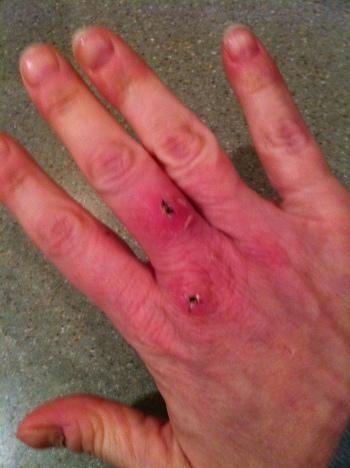 injuredhand5